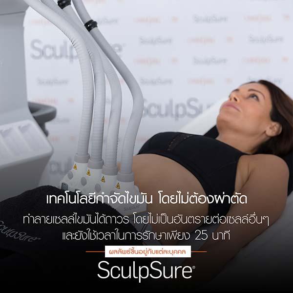 sculpsure-03